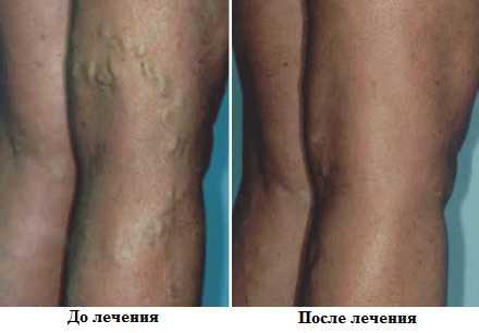Синяк на вене на ноге