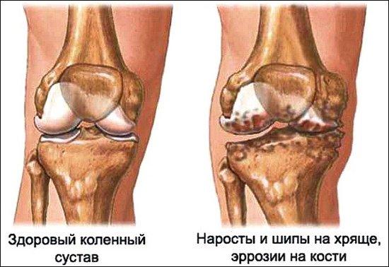 Артроцентр коленного сустава упражнения для суставов кисти ютуб