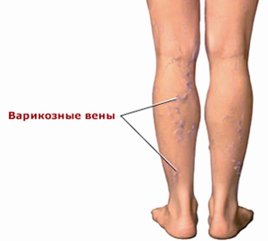 Причины и симптомы тромбофлебита
