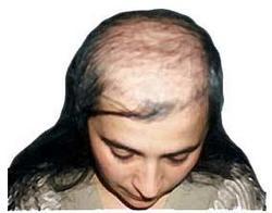 female-baldness2