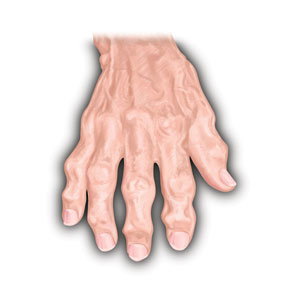 Arthritic-Hand-White---WEB