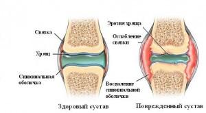 CHto-takoe-revmatoidnyjj-artrit-u-detejj