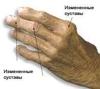 osteoarthros2