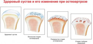 osteoartroz1